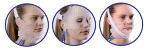Hilotherm masker